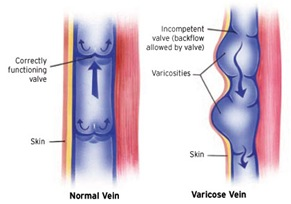 Best Varicose Vein Surgery in NYC