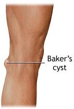 Baker's Cyst