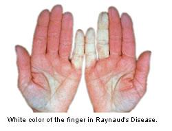 raynauds_disease