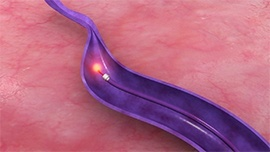 endovenuous-laser-ablation