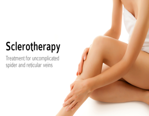 sclerotherapy 2