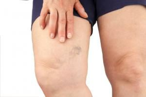 When Is Treatment for Varicose Veins Necessary?