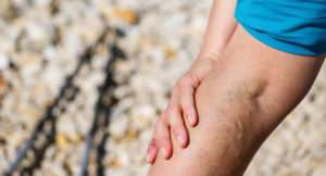 The Most Common Symptoms of Varicose Veins