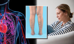 Can Stress Cause Varicose Veins?