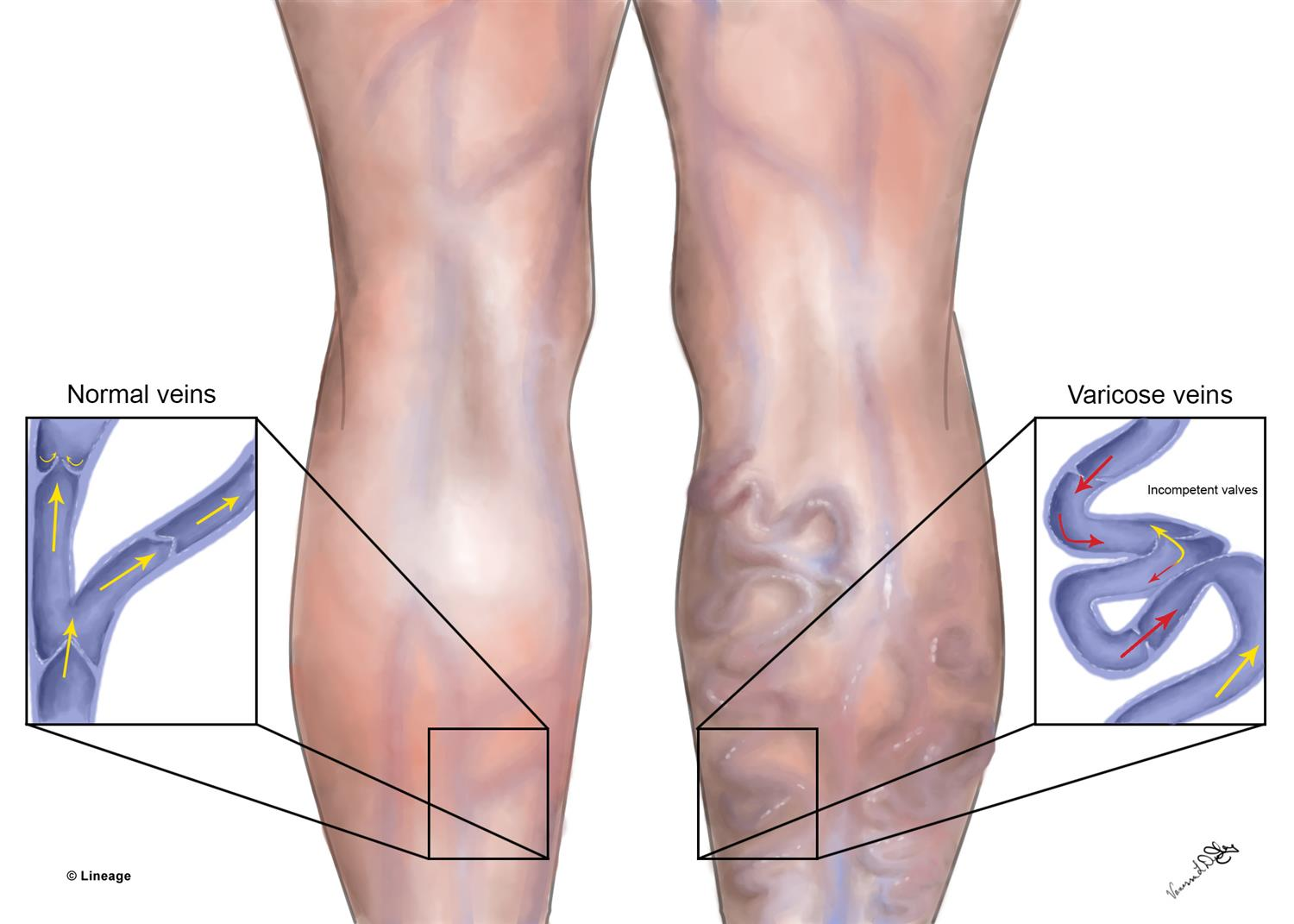 Are Varicose Veins Hereditary?